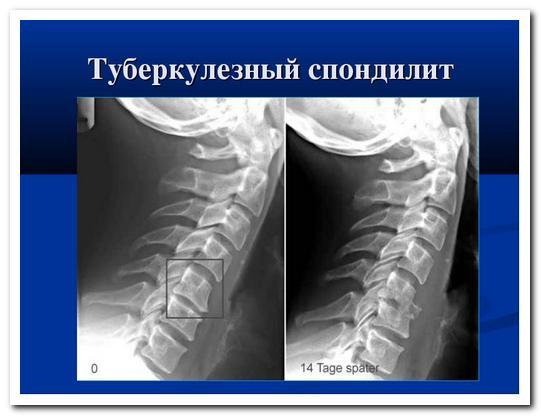 Гематогенный спондилит поясничного отдела позвоночника