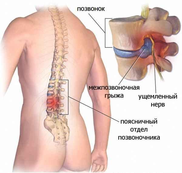 Голеностопный сустав и грыжа позвоночника рисунки сустава анатомия физиология рентгенанатомия внес внутренние нарушения функции вне