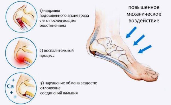 Стельки ортопедические при пяточной шпоре отзывы