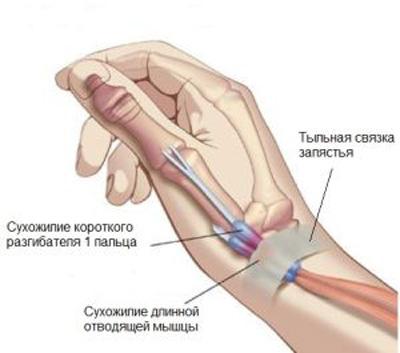 Стилоидит лучезапястного сустава лечение народными
