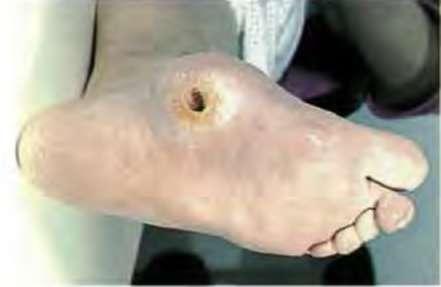 Что такое стопа Шарко признаки и симптомы болезни при диабете