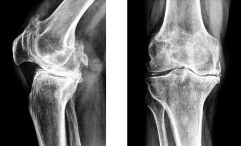 Субхондральный склероз суставной впадины начальный артроз боли в суставах лечение лекарства