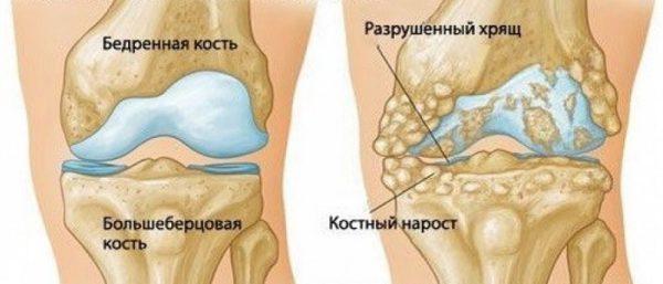 Субхондрального склероза суставных поверхностей артропил для суставов цена
