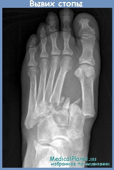 Деформация сустав лисфранка синовит коленного сустава симптомы лечение фото