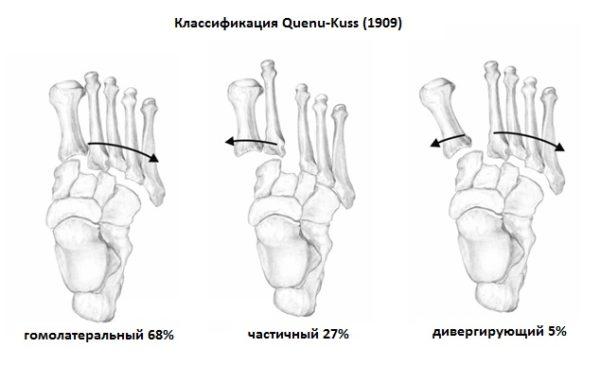 Переломо-вывих сустав лисфранка лфк болит вена под коленом сзади что делать