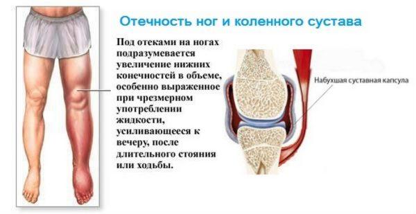 Заболевание суставов и их лечение таблетками врожденный вывих тазобедренного сустава у новорожденного