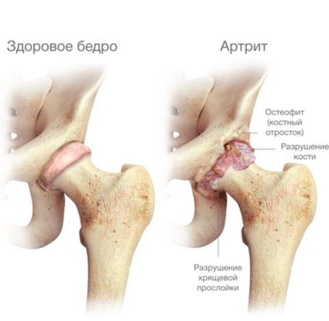 Лечение артрита тазобедренного сустава у детей остеомиелит суставов