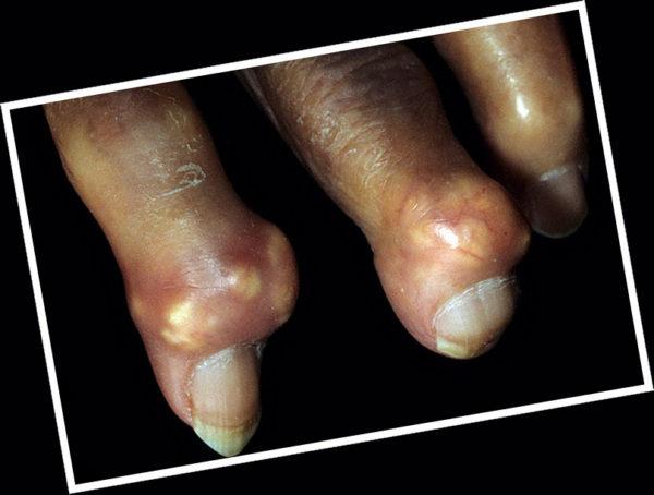 Подагра коленного сустава на латинском болезнь суставов ног молодняка жвачных ног