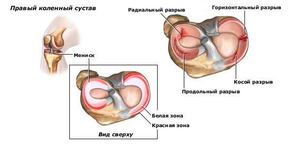 Разрывы эластичных хрящевых дисков коленного сустава менисков вет гель для суставов
