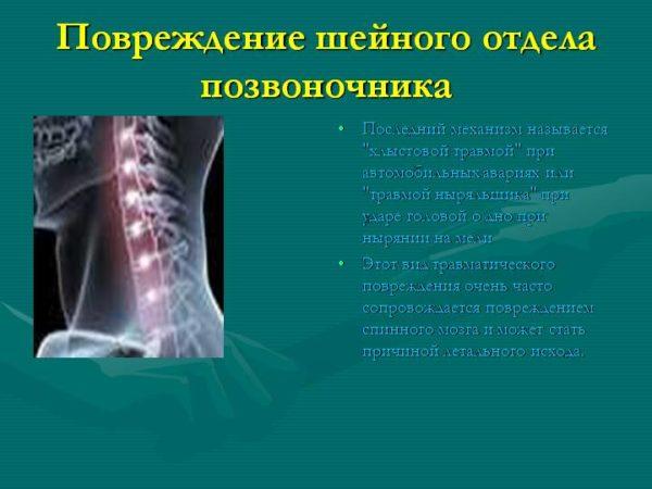 Травматический подвивих фасеточного сустава тугоподвижность мелких суставов кисти