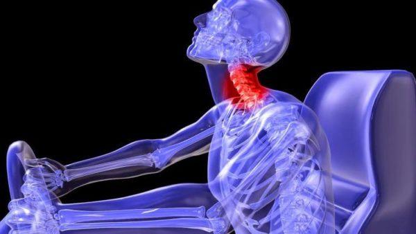 Экстензионная травма шейного отдела позвоночника