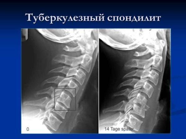 Туберкулезный спондилит позвоночника: симптомы и лечение