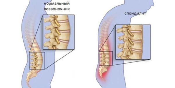 Заразен ли туберкулезный спондилит позвоночника