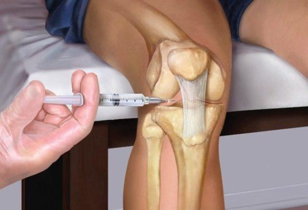 Жидкие протезы на коленные суставы уколы цена компрессы для снятия воспаления в суставах