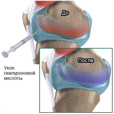 Опух коленный сустав после укола гиалуроновой