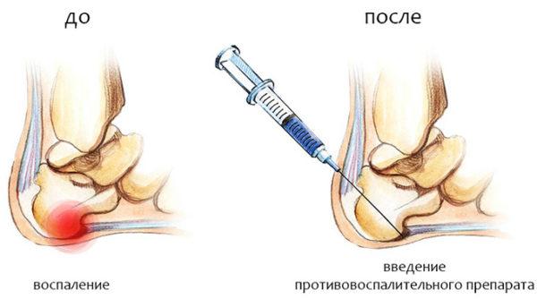 Укол при пяточной шпоре – лечение уколом в пятку.