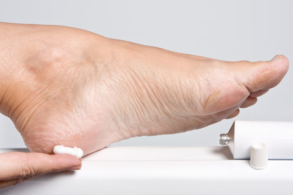 Уплотнение на подошве стопы: Причины (лечение), Профилактика. Уплотнение на подошве ноги больно наступать
