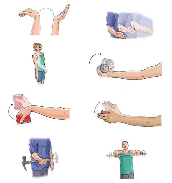ЛФК и упражнения для разработки руки после перелома лучевой кости