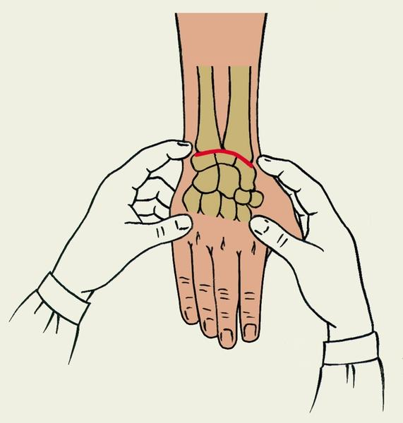 Гимнастика после перелома лучевой кости видео