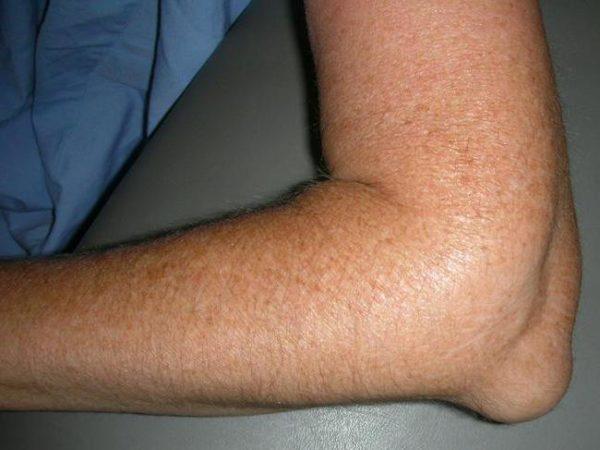 Ушиб локтевого сустава у маленького ребенка почему у маленького ребенка хрустят суставы