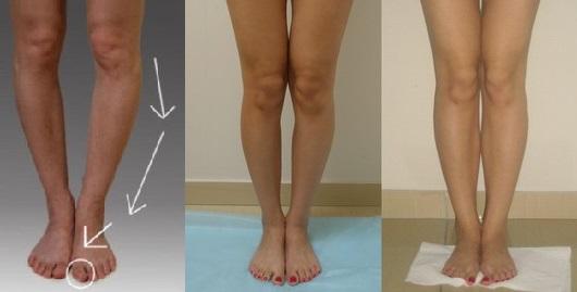 Что вызывает искривление коленного сустава повреждения свободный край медиальный мениск коленного сустава