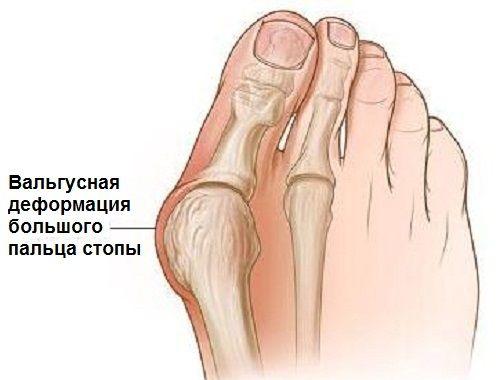 Субталарный сустав саркоидоз коленного сустава