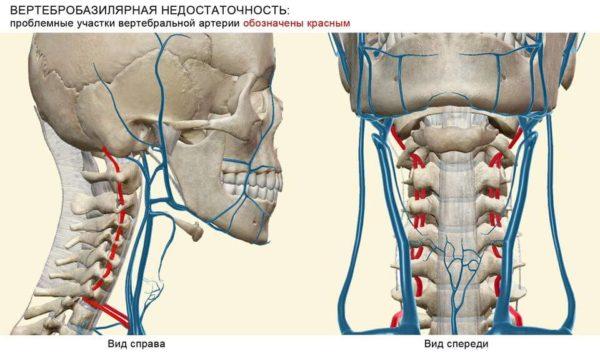 Вертебро-базилярная недостаточность на фоне остеохондроза шейного отдела