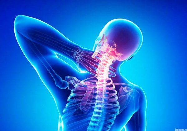 Синдром вбн на фоне шейного остеохондроза