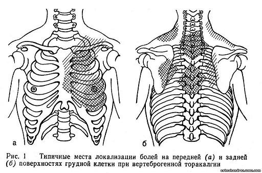 Вертеброгенная (вертебральная) торакалгия слева и справа: причины, симптомы, лечение синдрома