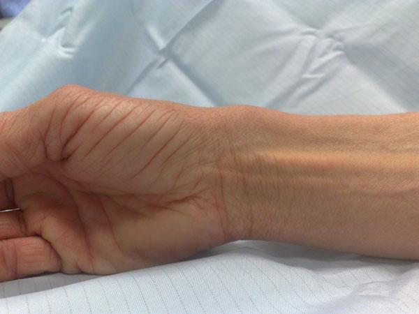 Тендинит запястья лечение — Суставы