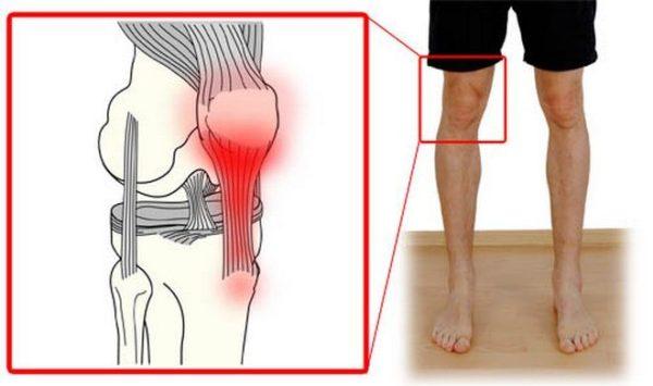Воспаление суставных связок мумие при переломах и воспалении связок суставов