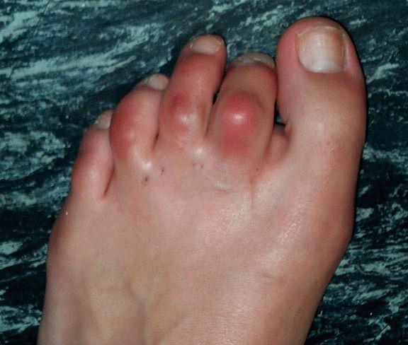 Отеки суставов пальцев ног восстановление регенерация суставов