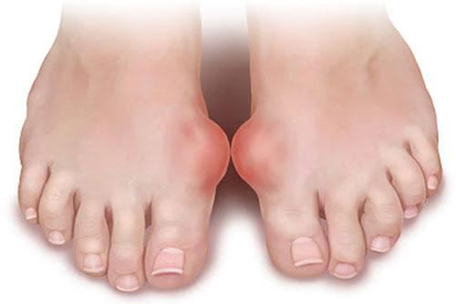 Чем лечить воспаленные пальцы на ногах