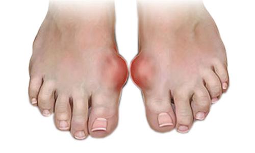 Воспаление суставов пальца ноги рекомендации по реабилитации после замены тазобедренного сустава