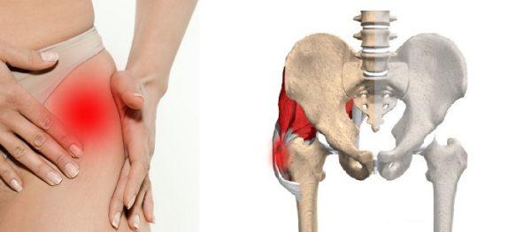 Покраснение кожи в области тазобедренных суставов лечение суставов в санаториях россии цены