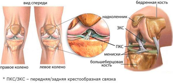 Боль возникает при сгибании коленного сустава хондрома т/б сустава