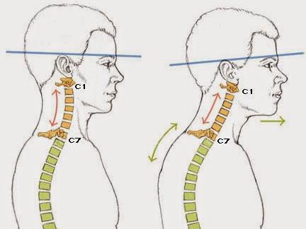 Выпрямление шейного лордоза симптомы