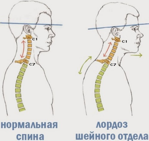 Выпрямление лордоз шейного отдела позвоночника лечение