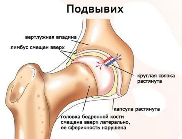 Верхний вывих плечевого сустава - Лечение Суставов