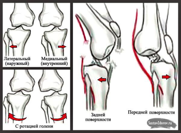 Застарелый вывих коленного сустава если болит колено после эндопротезирования.что делать