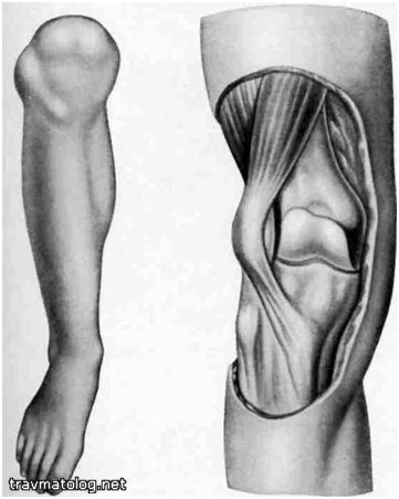 Вывих колена причины диагностика и возможные осложнения методы лечения
