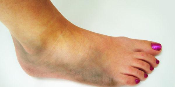 Вывих ноги причины диагностика первая помощь и лечение