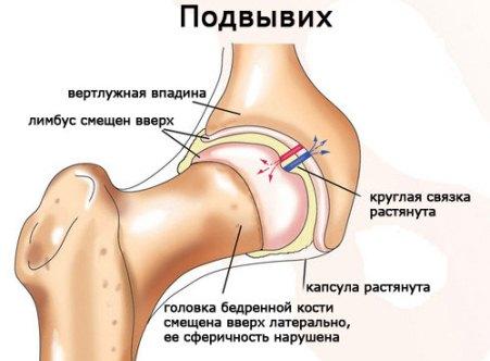 Симптомы и лечение вывиха тазобедренного сустава у взрослых