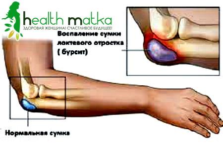 Жидкость в локтевом суставе лечение