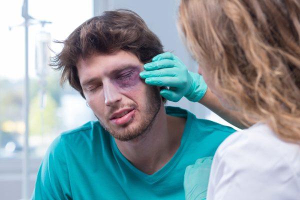 Что делать при ушибе глаза 0