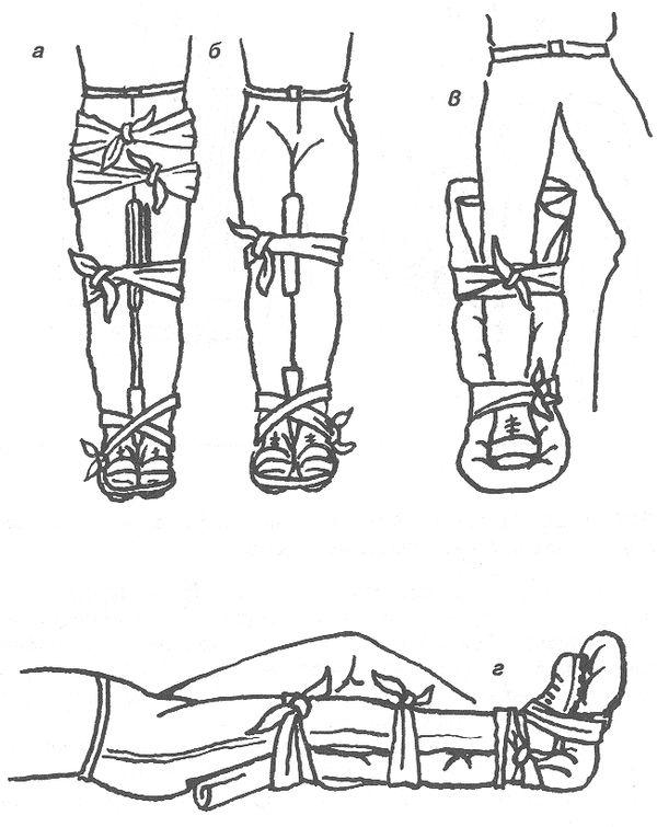 Как наложить шину при переломе