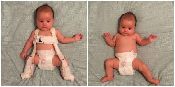 Дисплазия тазобедренных суставов у новорожденного младенца